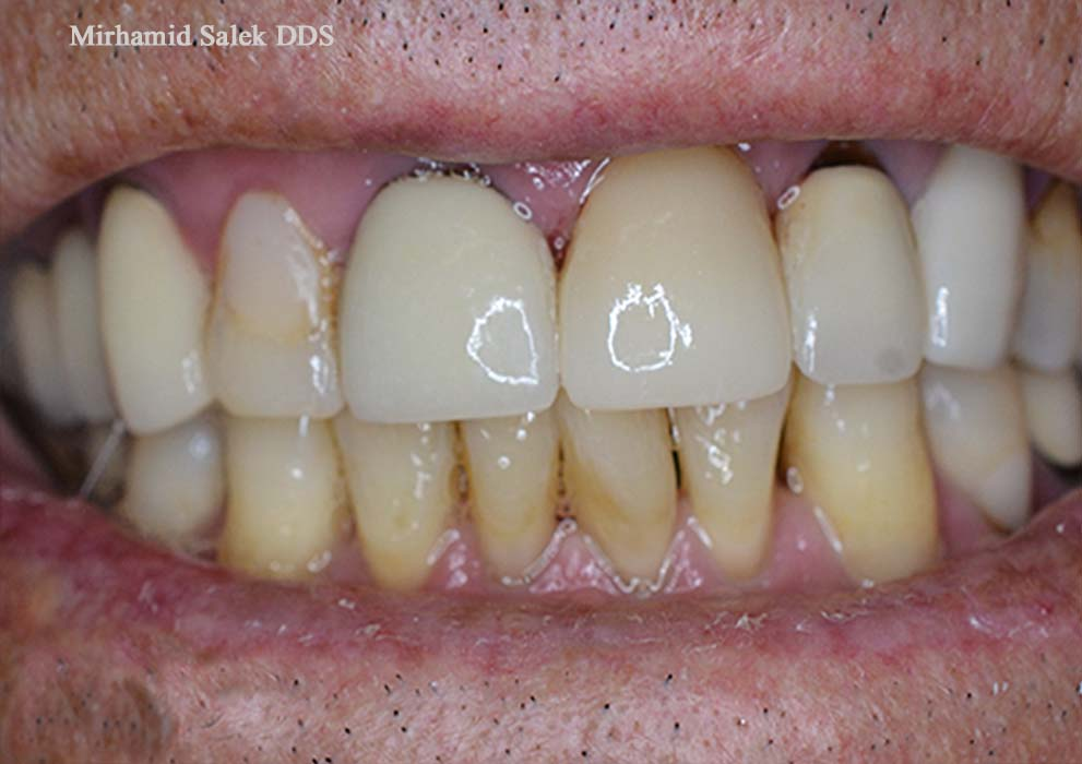 After-Front upper teeth dental crown