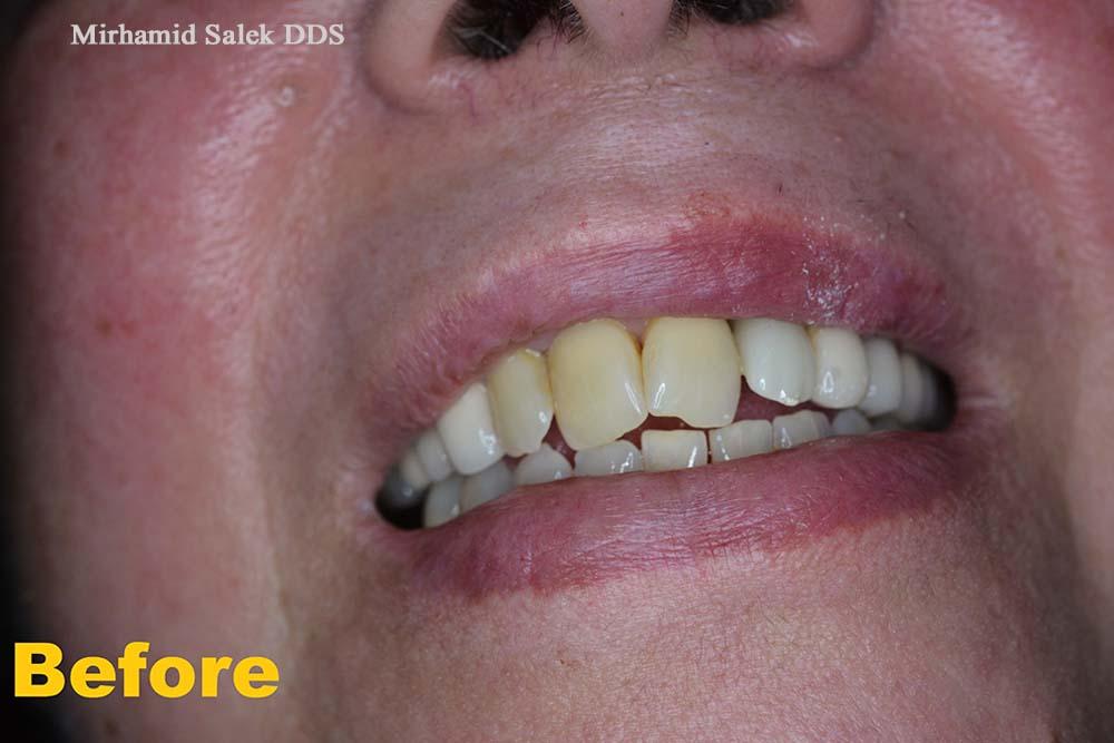 Before-Front teeth Crown