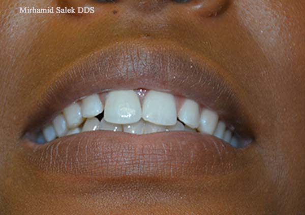 After-Replacing Chipped Tooth