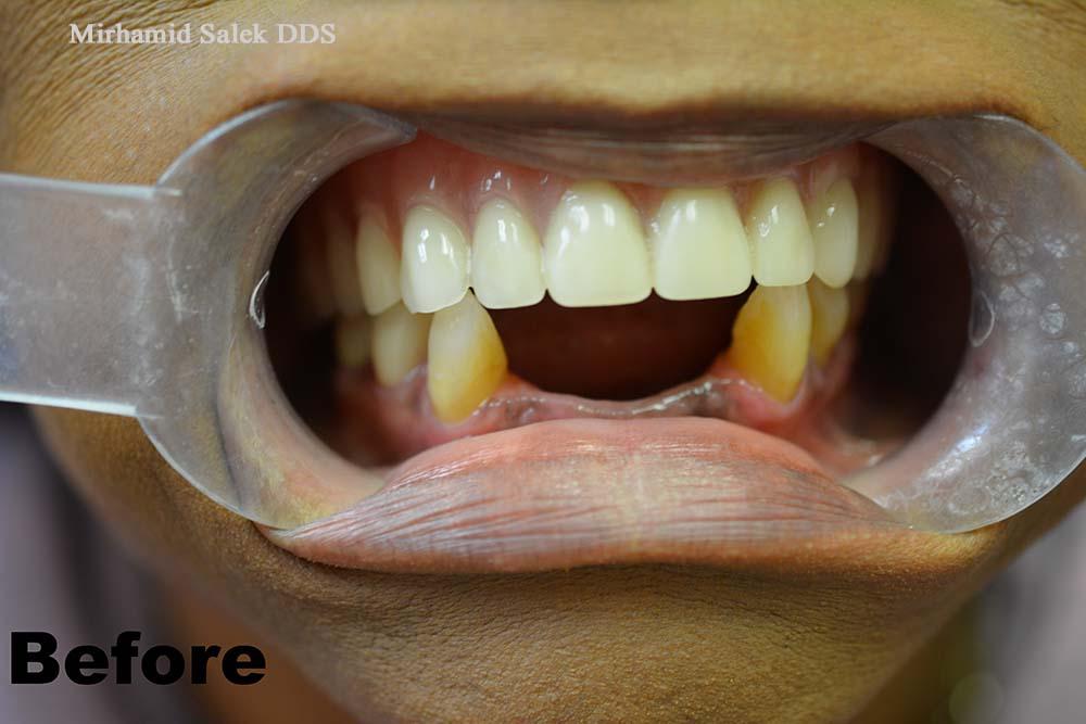 Before-Dental Partial