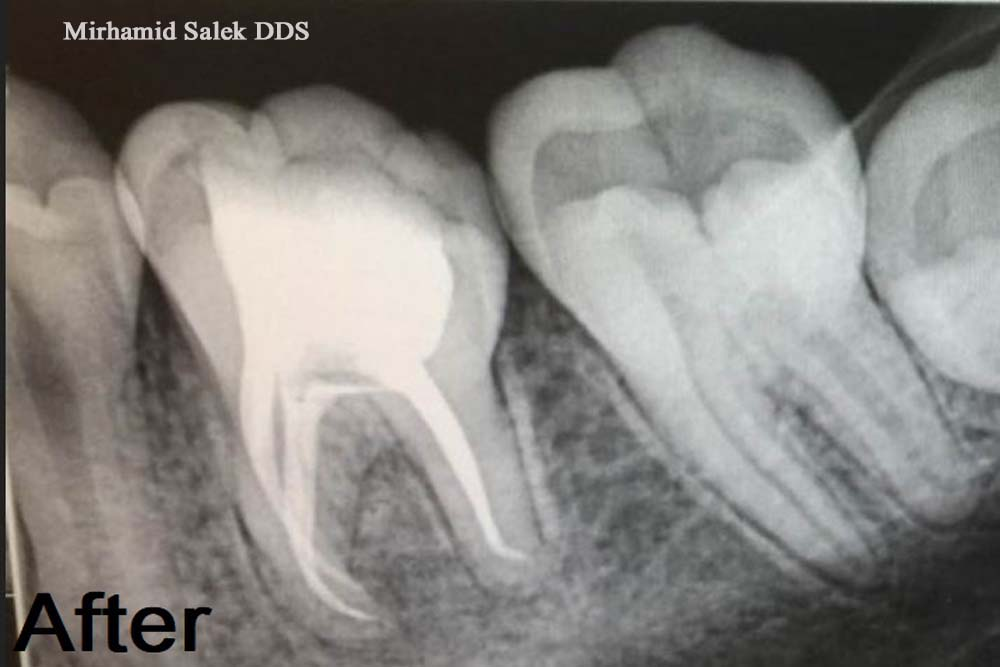 After-Build up After a Root Canal