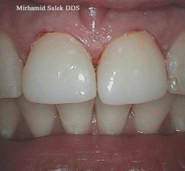 After-Root Canal and Crown