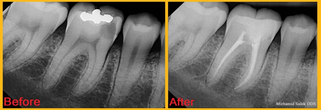 root canal before and after photos