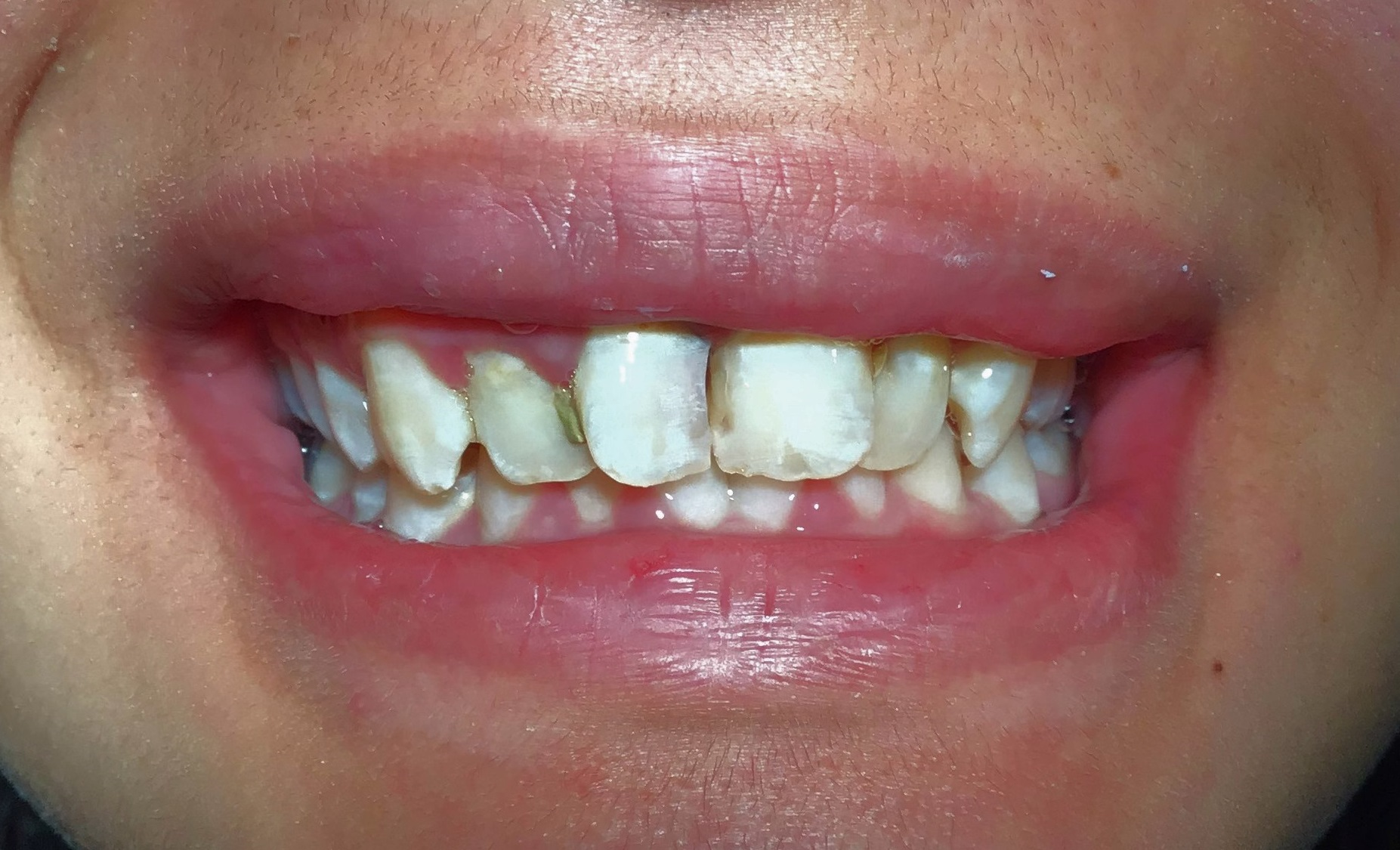 Before-Front Crowns